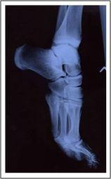 ankle_x-ray_medium